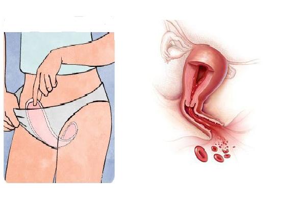 Беременность скудная менструация