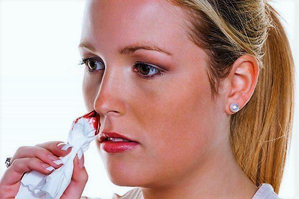 одним из признаков гипоменореи является носовое кровотечение