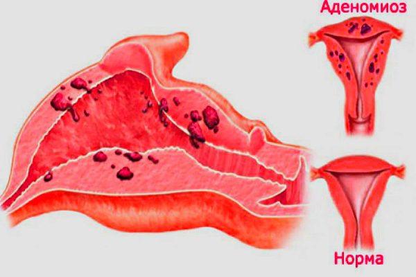 при аденомиозе нарушается свертываемость крови