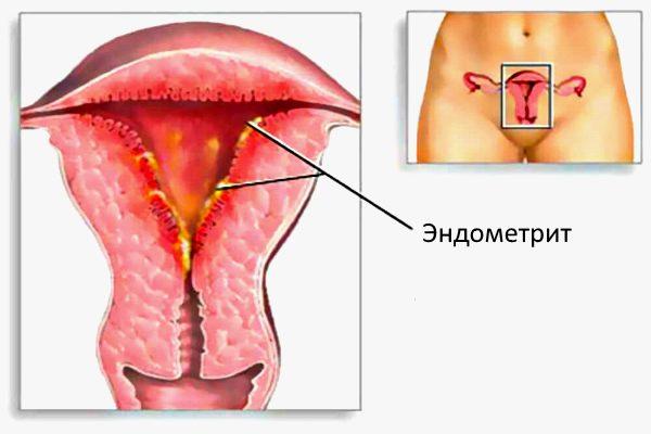 при эндометрите выделения и менструация не связаны между собой