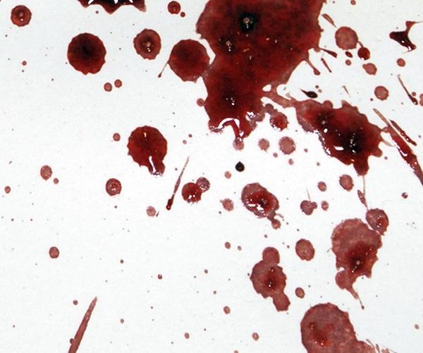 Темная кровь на белом