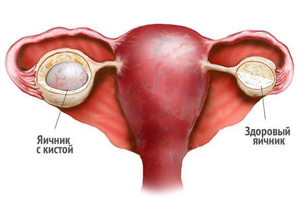 кисты яичников могут провоцировать обильные месячные со сгустками