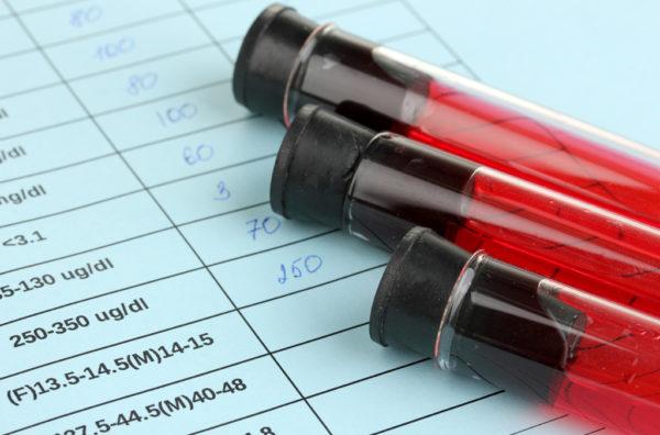 Особенности сдачи анализов при месячных