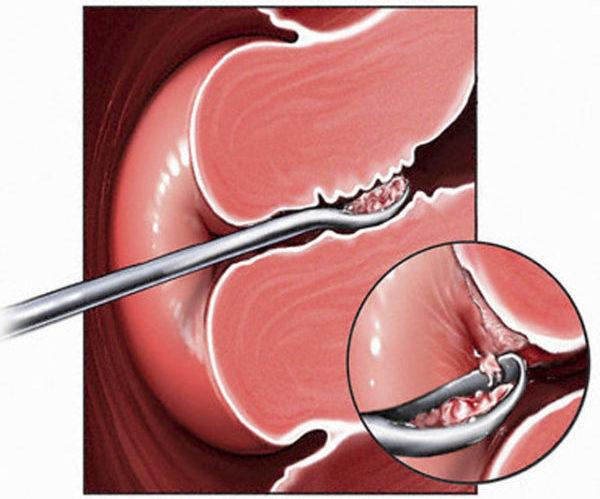 Чистка матки после родов