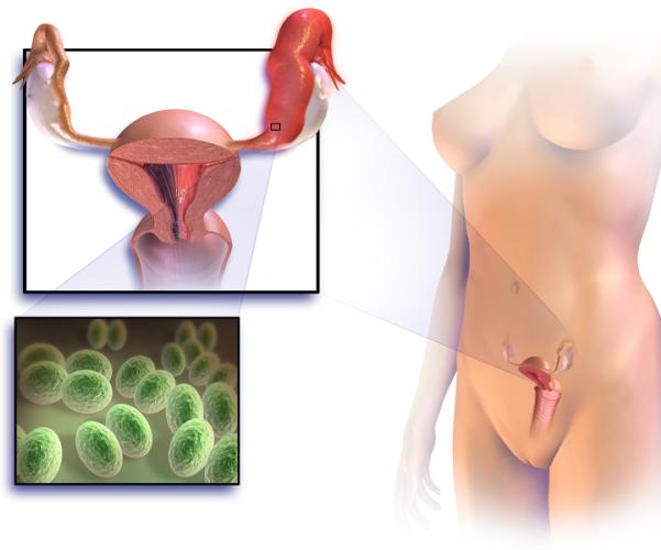 Воспаление репродуктивных органов