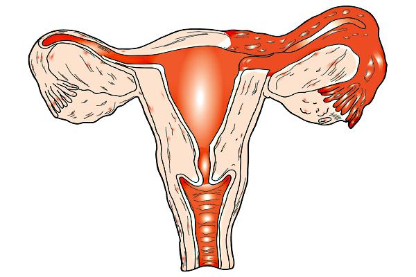 Болит низ живота и поясница причины у женщин после родов