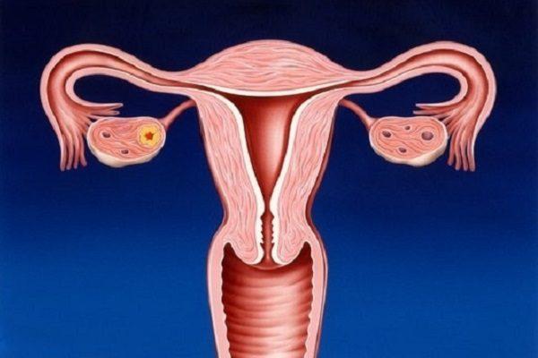 причиной боли в пояснице перед месячными может быть поликистоз яичников