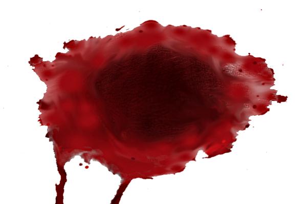 сгустки крови, напоминающие печень
