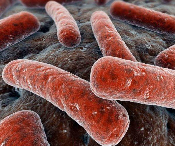Генитальный туберкулез