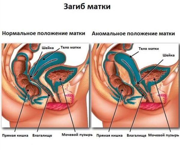 Ретрофлексия матки