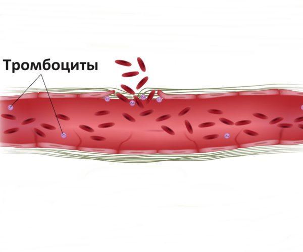 Плохая свёртываемость крови