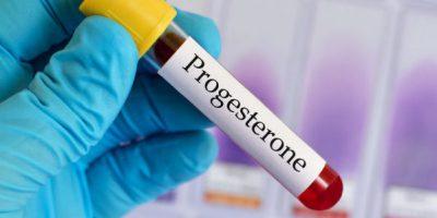 Прогестерон анализ