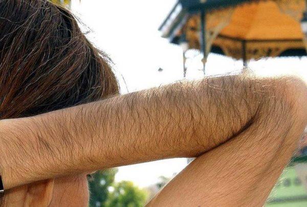 волосатость